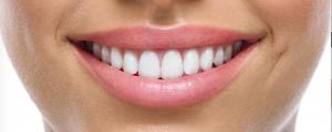 damon smile sistema